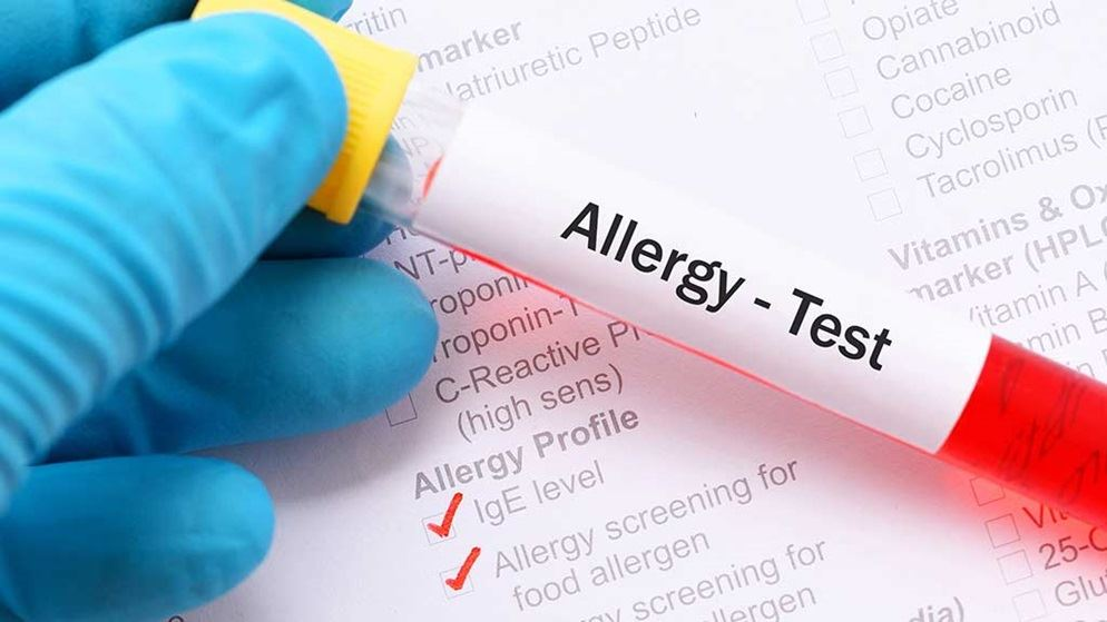 food allergy blood test